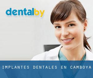 Implantes Dentales en Camboya