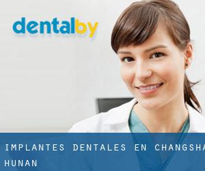 Implantes Dentales en Changsha (Hunan)