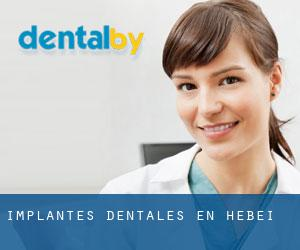 Implantes Dentales en Hebei